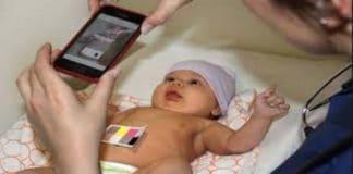 akıllı telefon ile sarılık testi