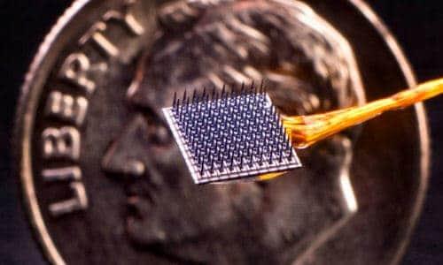 Beyin Implantı