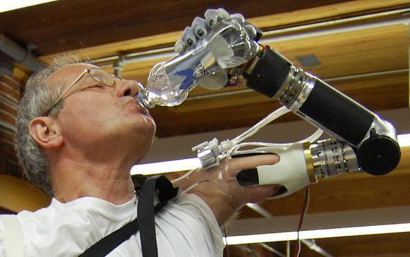 robotik protez