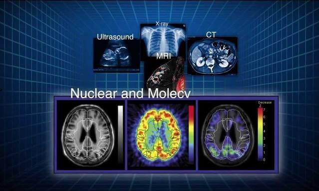 nükleer tıp nedir