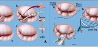 Mitral Kalp Kapakçığı Tedavisi