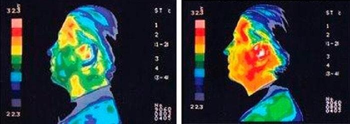en çok radyasyon yayan aletler