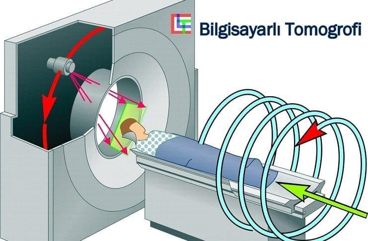 bilgisayarli-tomografi