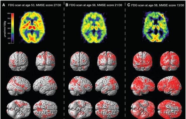 beyin-tomografisi