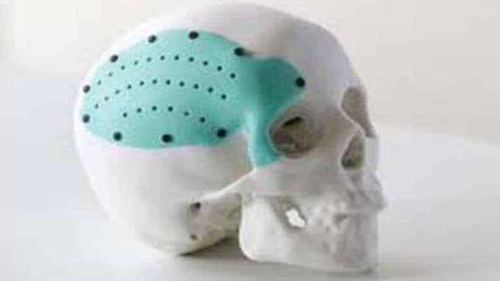 implant kafatası