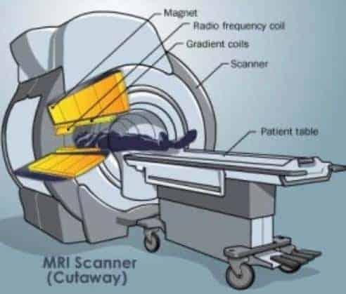 MRI nasıl çalışır