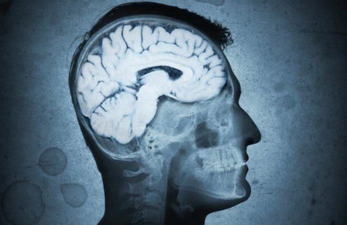 Beyin-Bulut