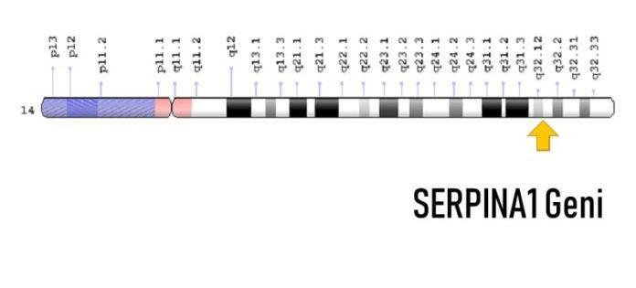 SERPINA1 Geni