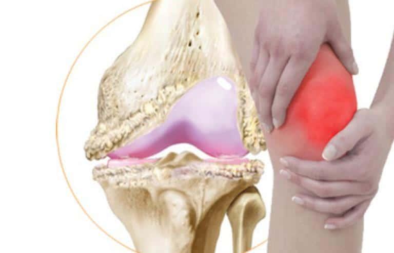 Osteoartrit neden olur