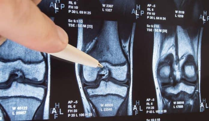 Osteoartrit Nedir