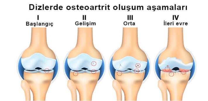 osteoartrit semptom